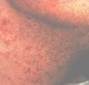 Close up of folliculitis