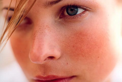 Signs and Symptoms of Rosacea