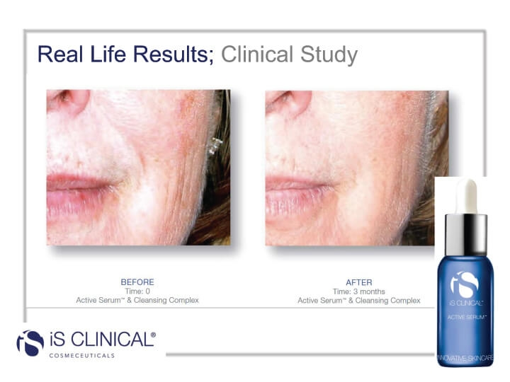 iS Clinical Active Serum before and after photos