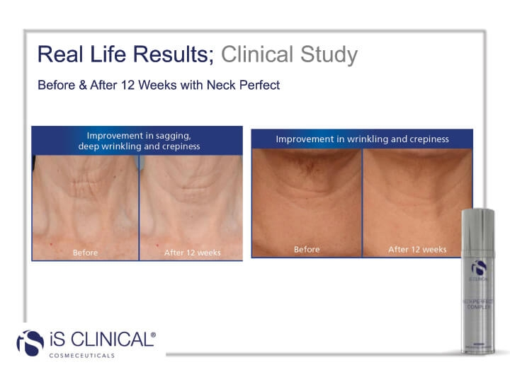 Clinical Study of Neck Perfect Complex before and after photos