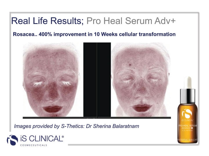 iS Clinical Pro-Heal Serum results (before and after image)