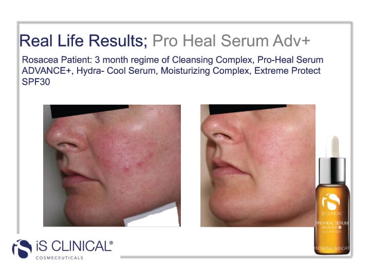 iS Clinical Pro-Heal Serum results (before and after client photo)