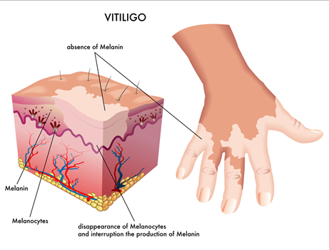 Image of skin structure of vitiligo sufferer