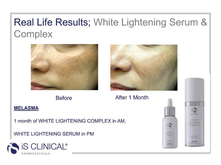 White Lightening Complex before and after image of face