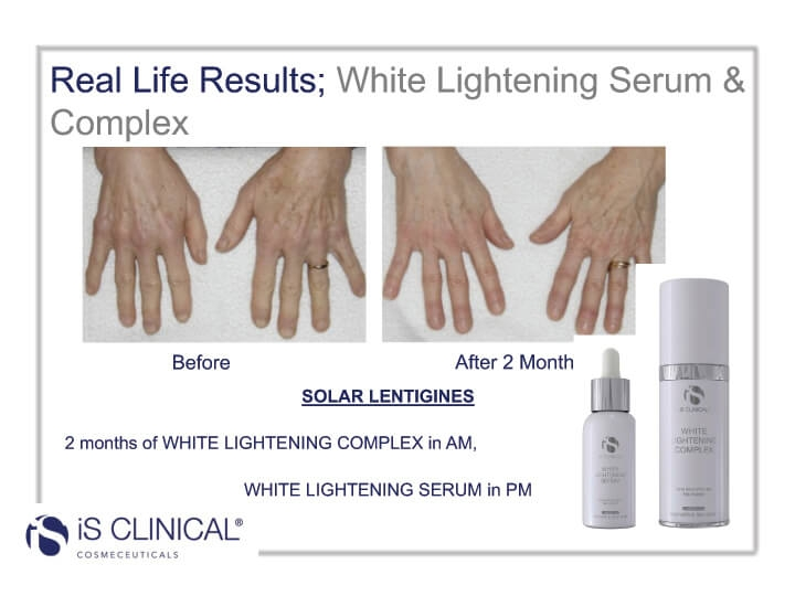 White Lightening Complex before and after image of hands
