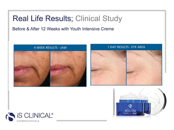 iS Clinical Youth Intensive Creme before and after image of jaw and eye area