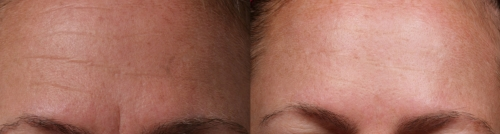 before and after brow image