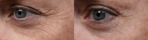 before and after eyes image