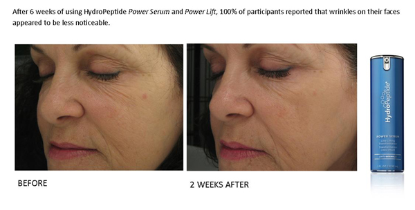 power serum results