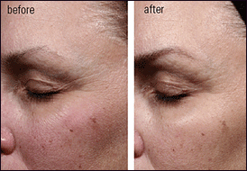 Idebenone moisturiser before and after picture