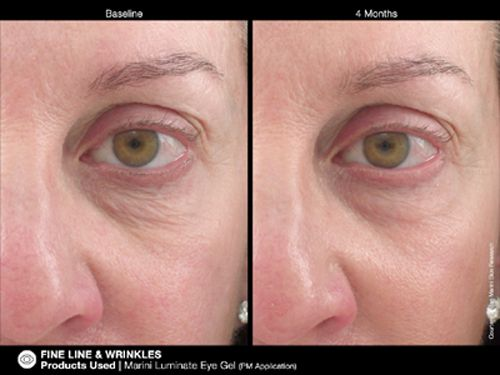 jan Marini Luminate Eye Ge before and after