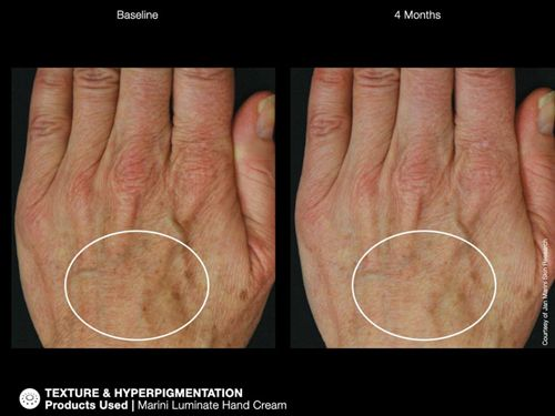 jm hand before and after