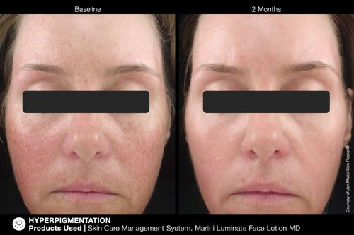 jan Marini Luminate serum before and after
