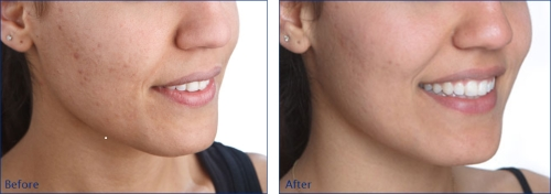 oxyderm before and after