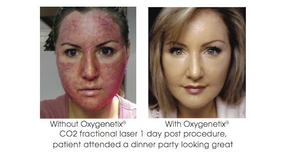 oxygenetix before and after