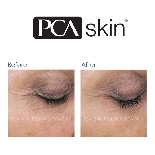 pca rej serum before and after image